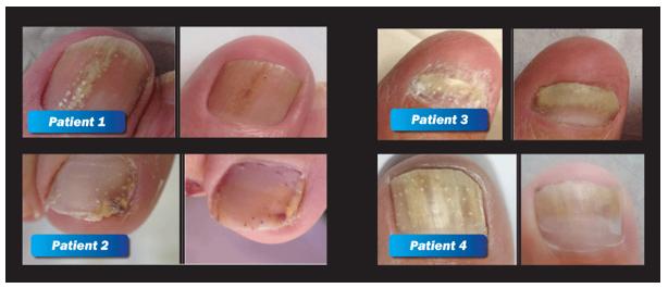 Clearanail Fungal Nails